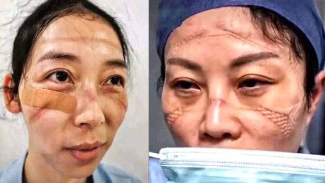 Çin'deki koronavirüs salgını bu kez sağlık görevlilerini vurdu! 1716 kişiye bulaştı, 6 kişi öldü