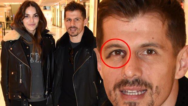 Emre Belözoğlu eşiyle görüntülendi, mor gözü şaşırttı