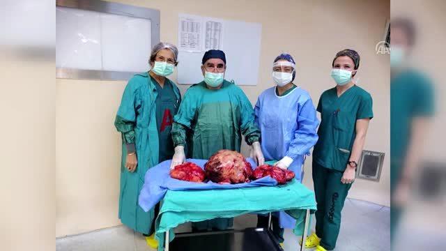 Karnındaki ağrının nedeni 20 kilogramlık kitleymiş - İZMİR