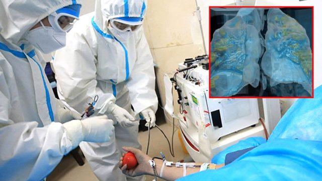 Koronavirüsün akciğerlere verdiği zarar sanal gerçeklik videosu ile gözler önüne serildi