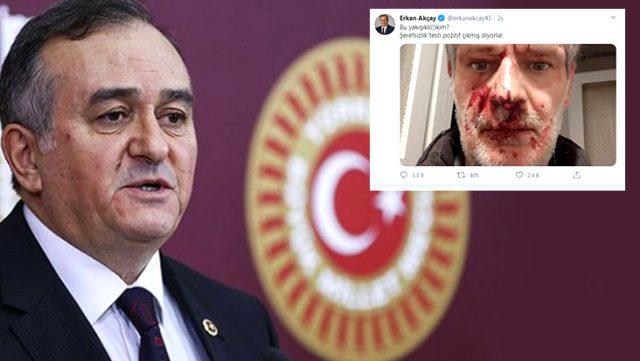 MHP'li Grup Başkanvekili Erkan Akçay, darp edilen yazarın fotoğrafını paylaştı