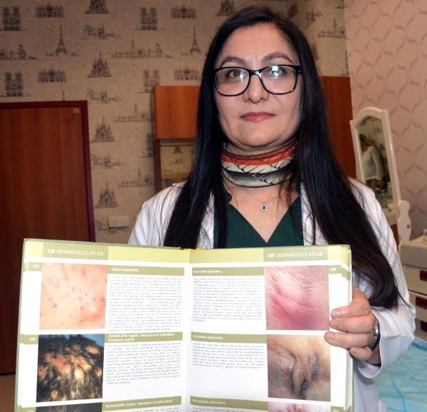 Prof Dr. Öztürk, 'Köpek memesi' hastalığına karşı uyardı